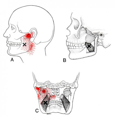 medial pterygoid Travell and Simons